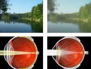 Операции по лечению катаракты