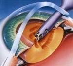 лечения катаракты