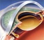 лечение катаракты Белгород
